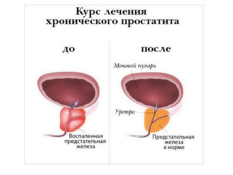 Можно вылечить хронический простатит совсем лечение простатита циклоферон