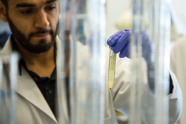 Микроскопия осадка мочи: норма, расшифровка результатов